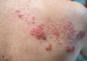 Contaminated skin spreads germs